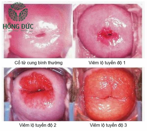 Hình ảnh viêm lộ tuyến cổ tử cung độ 1, 2, 3
