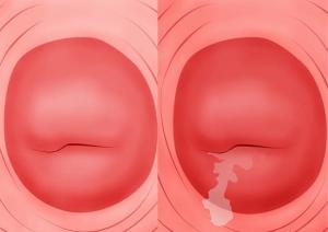 Triệu chứng ban đầu viêm cổ tử cung
