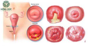 Hình ảnh viêm cổ tử cung độ 1 2 3