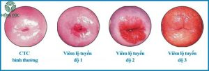 Hình ảnh viêm lộ tuyến cổ tử cung độ 2